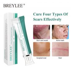 Removal Scar Cream Face Pimples Scar Stretch Marks Removal Acne Treatment Whitening Moisturizing Cream Skin Care MSD01